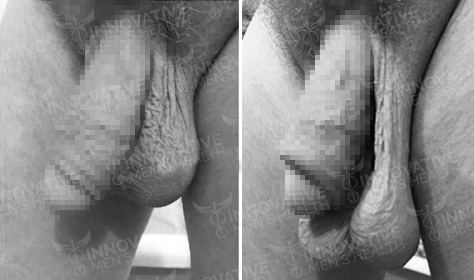 Scrotox Before And After Picture - Innovative Men's Health